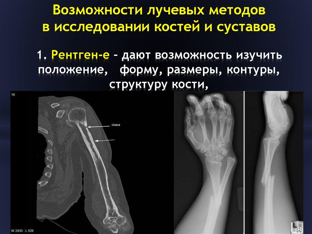 Методы диагностики заболеваний костей и суставов парез тазобедренного сустава