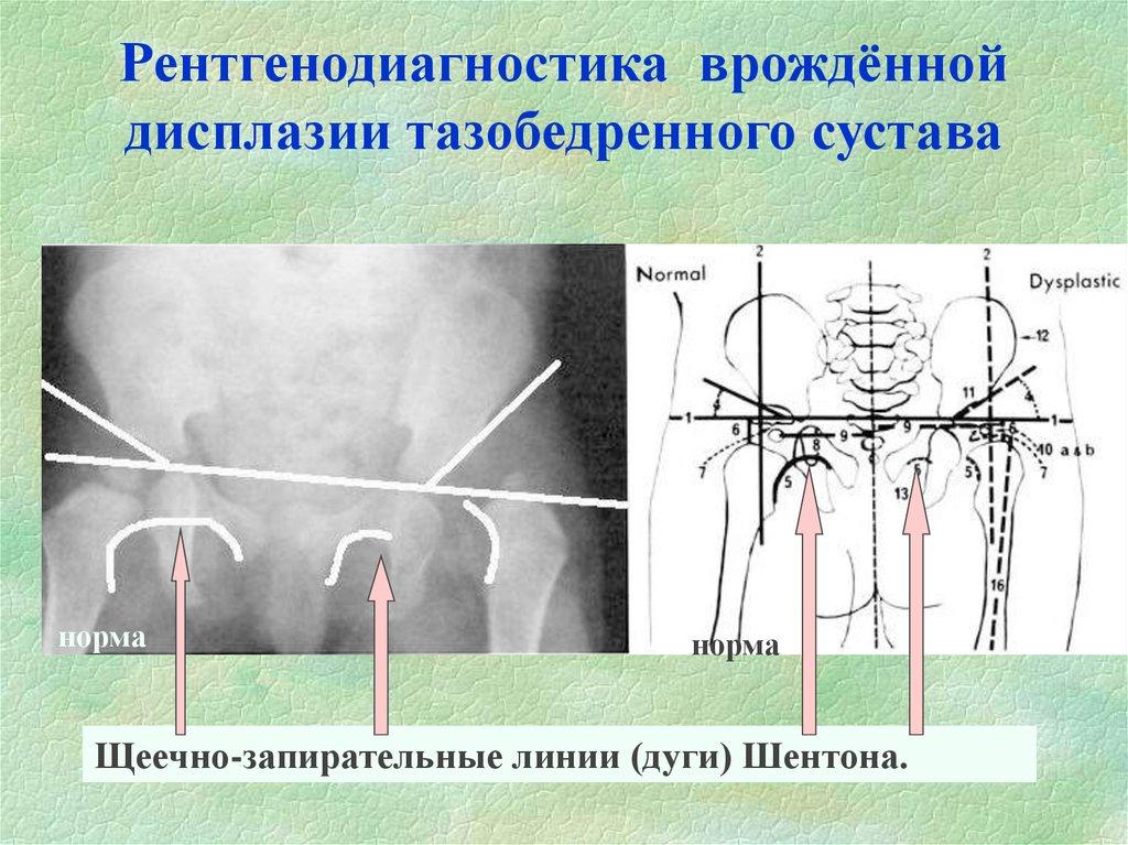 Типы дисплазии тазобедренных суставов