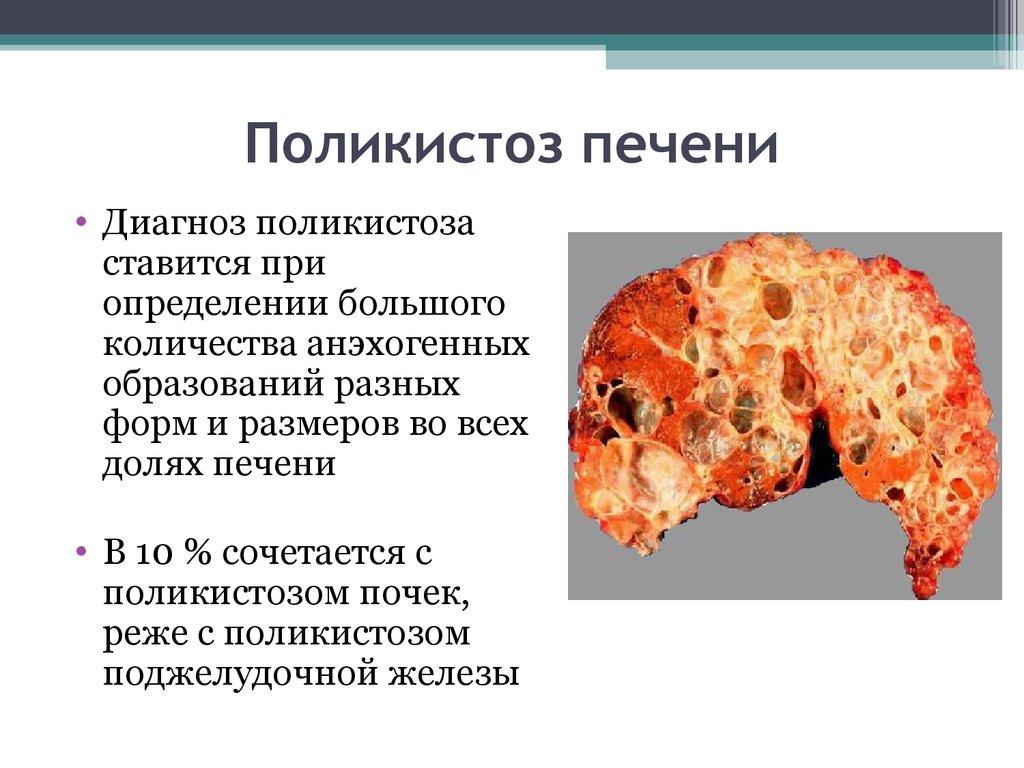 Диета При Заболеваниях Кисты Почек. Диетическое питание при кисте почки?
