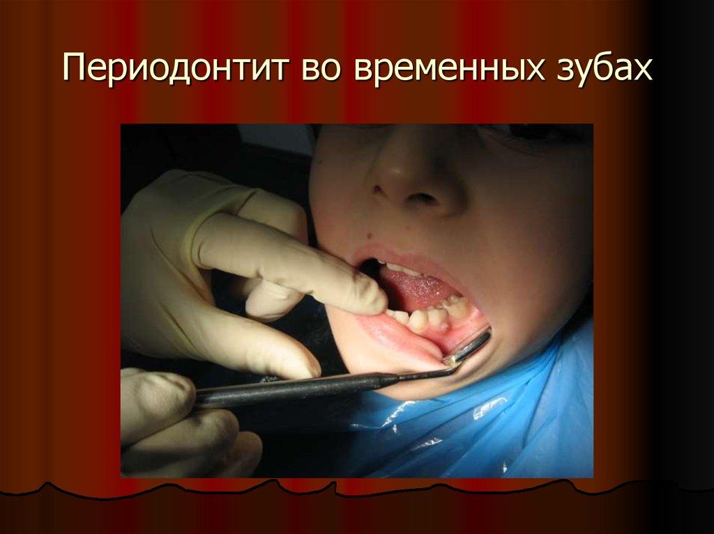 lektsii-periodontita