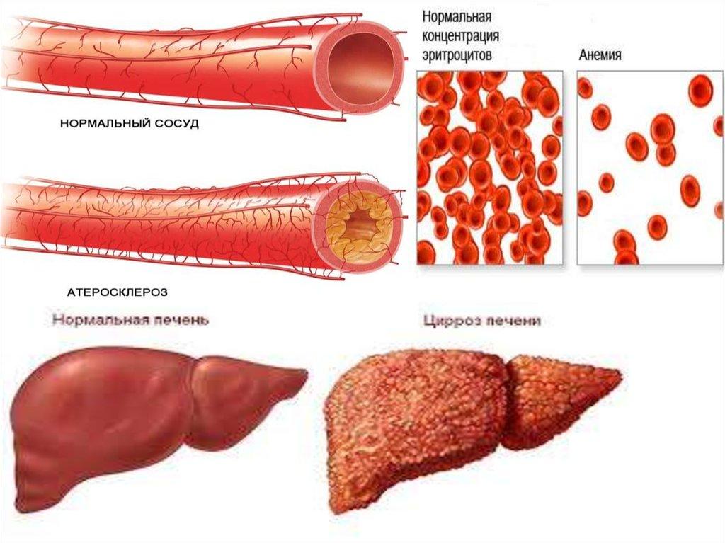 где в теле человека размножается малярийный паразит