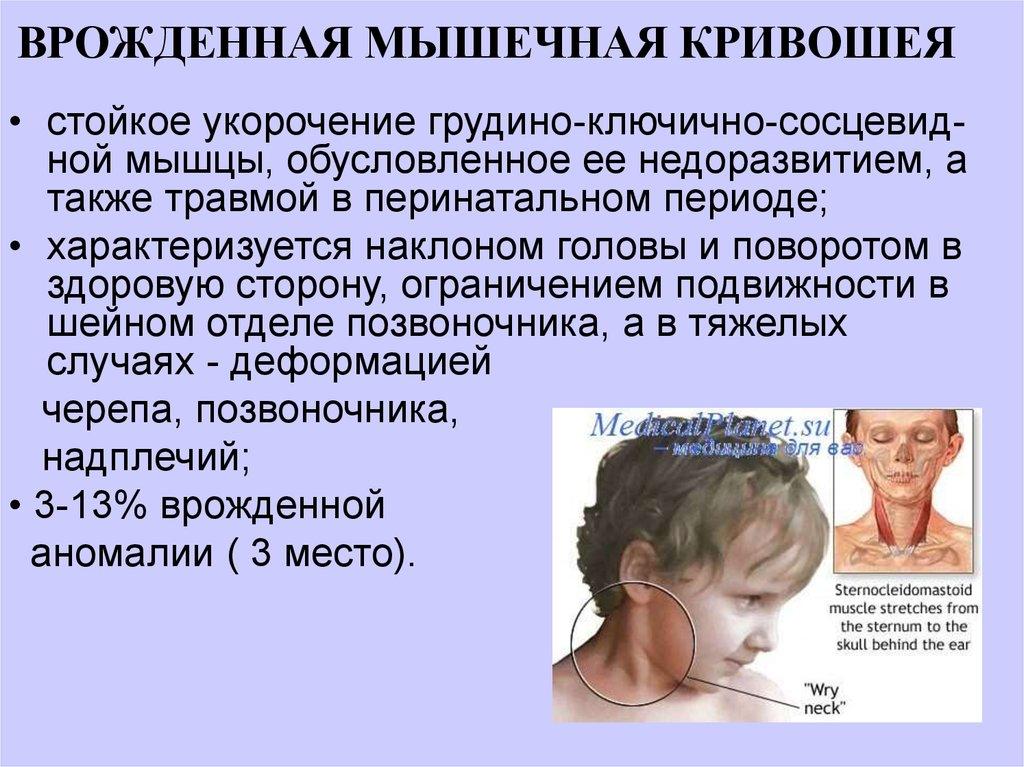 Мышечная кривошея у ребенка в год