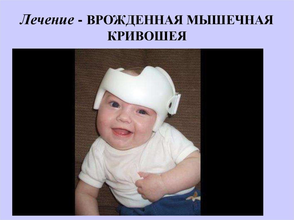 Мышечная кривошея у детей мкб 10