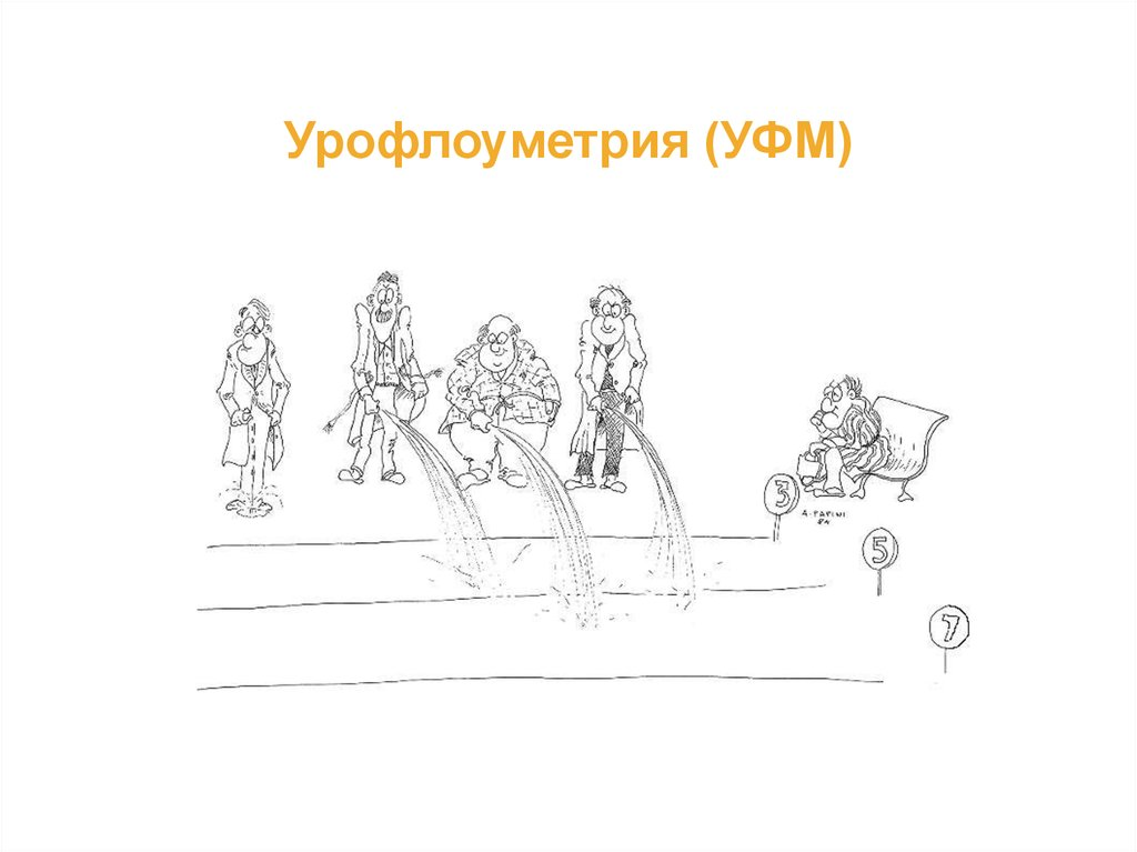 Урофлоуметрия (УФМ)