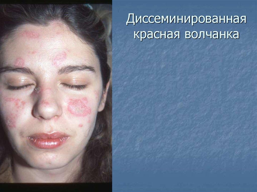 Красная волчанка кожно суставной тип травма сустава го