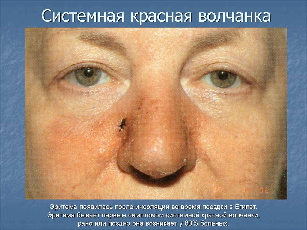 systemic lupus erythromatosis