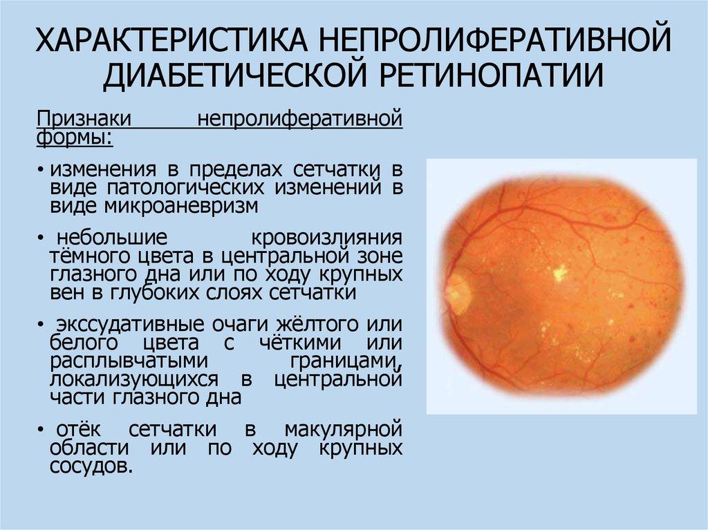 Ретинопатия глаз при сахарном диабете что это