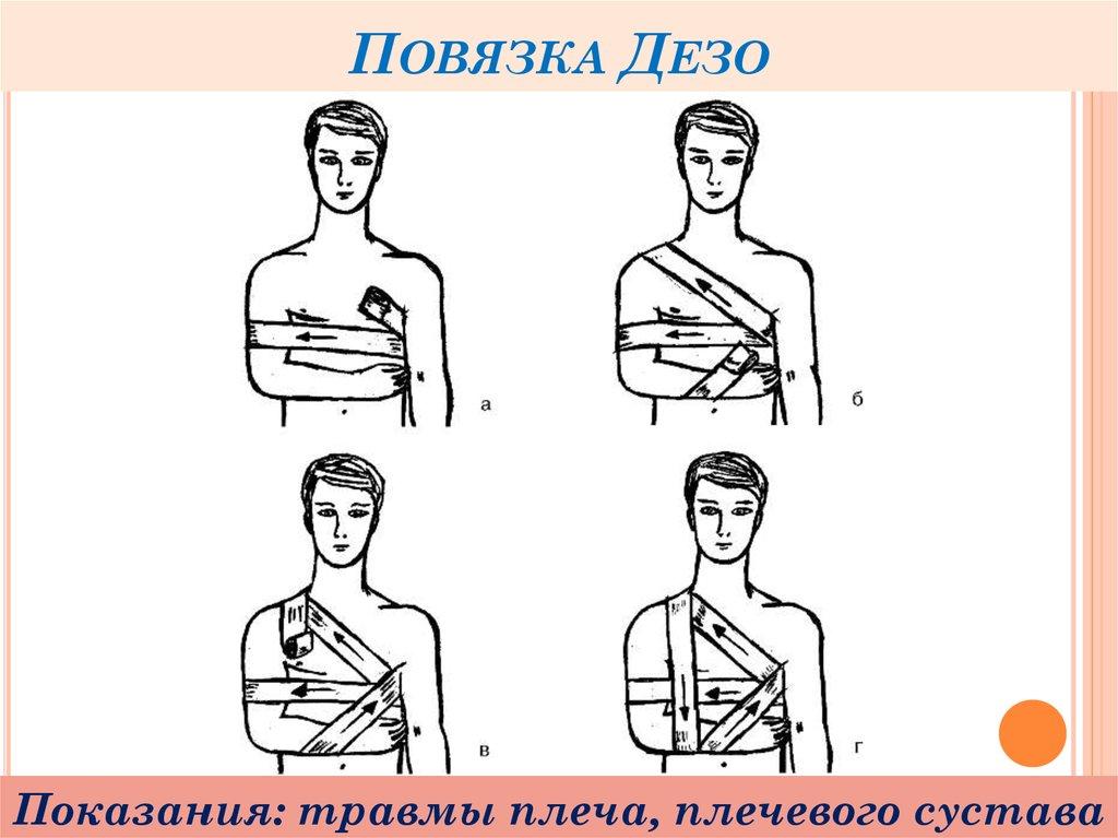 пожалуй, дезо повязка с картинками почему человеку приходит