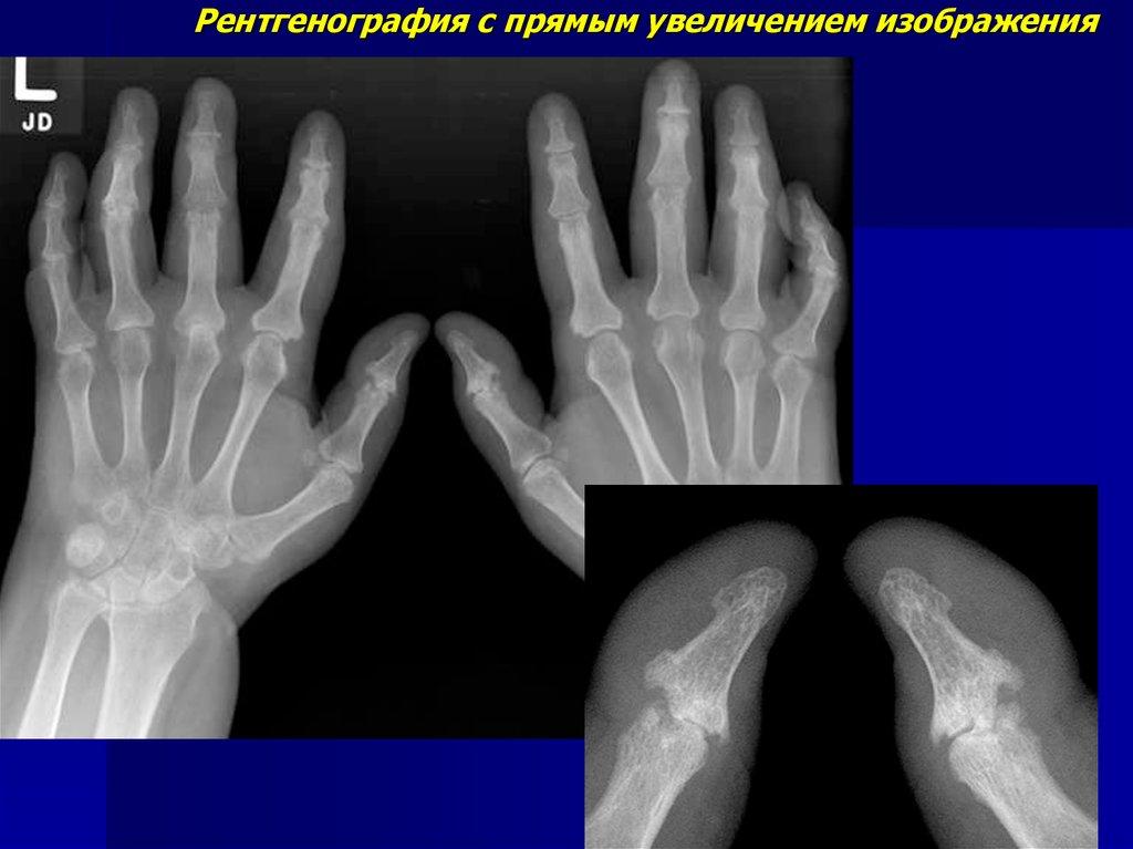 Рентген методика исследования костно-суставного аппарата бальзам лошадиная сила для суставов купить в москве