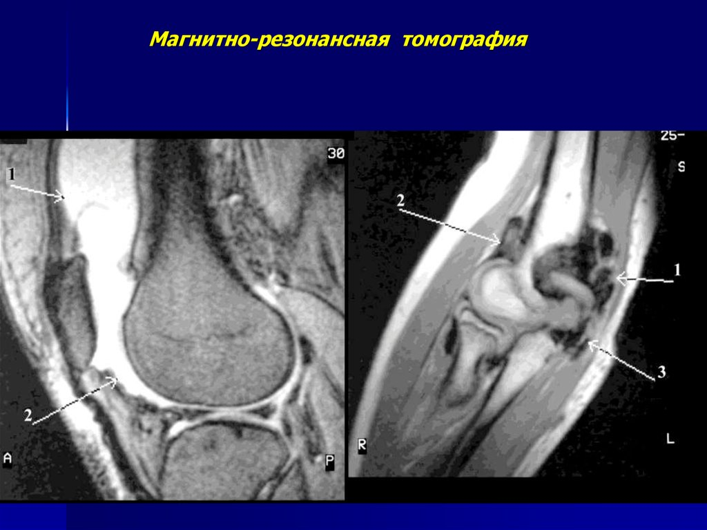 Томограмма костно-суставной системы воспаленный сустав стопы