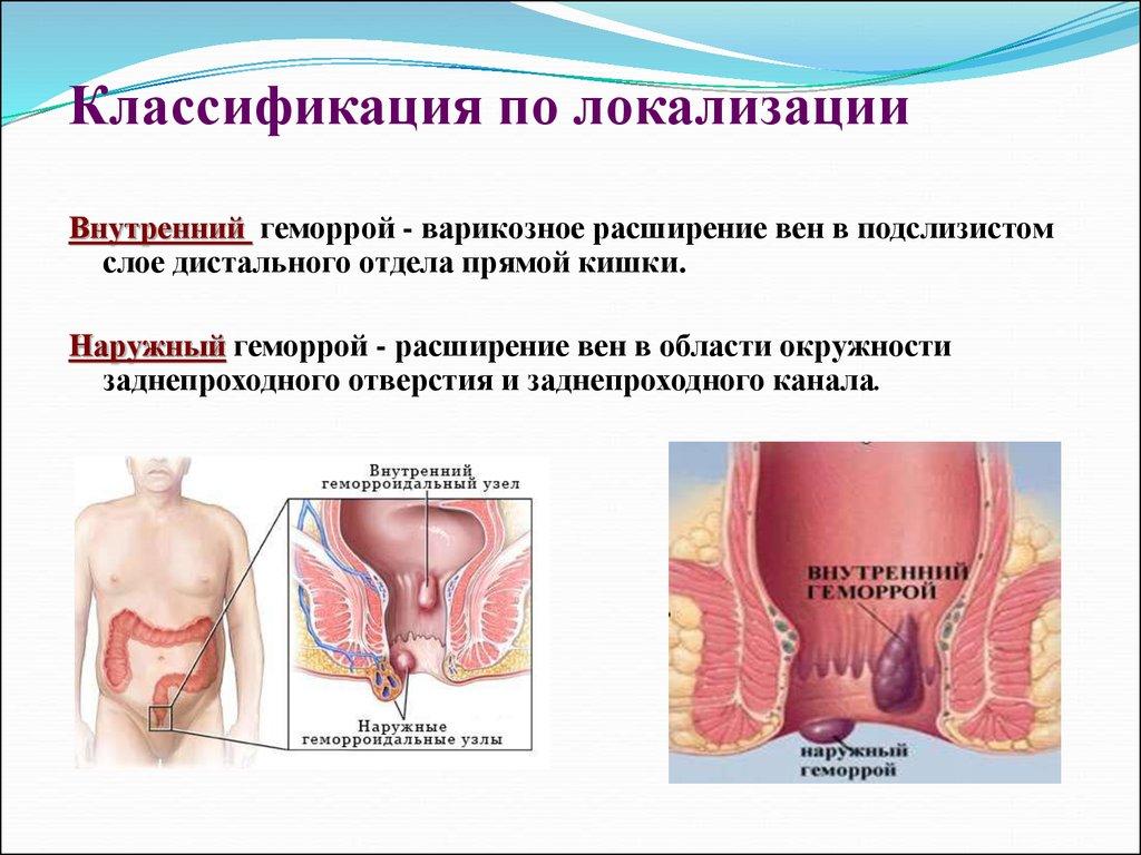 Почему может возникнуть подтекание инфильтрата кишечника или слизи из заднепроходного отверстия