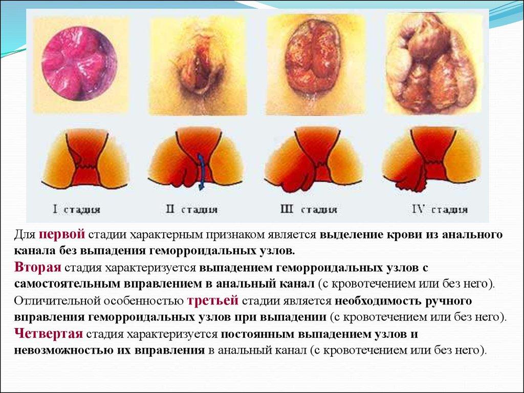 Воспаление слизистой анального отверстия