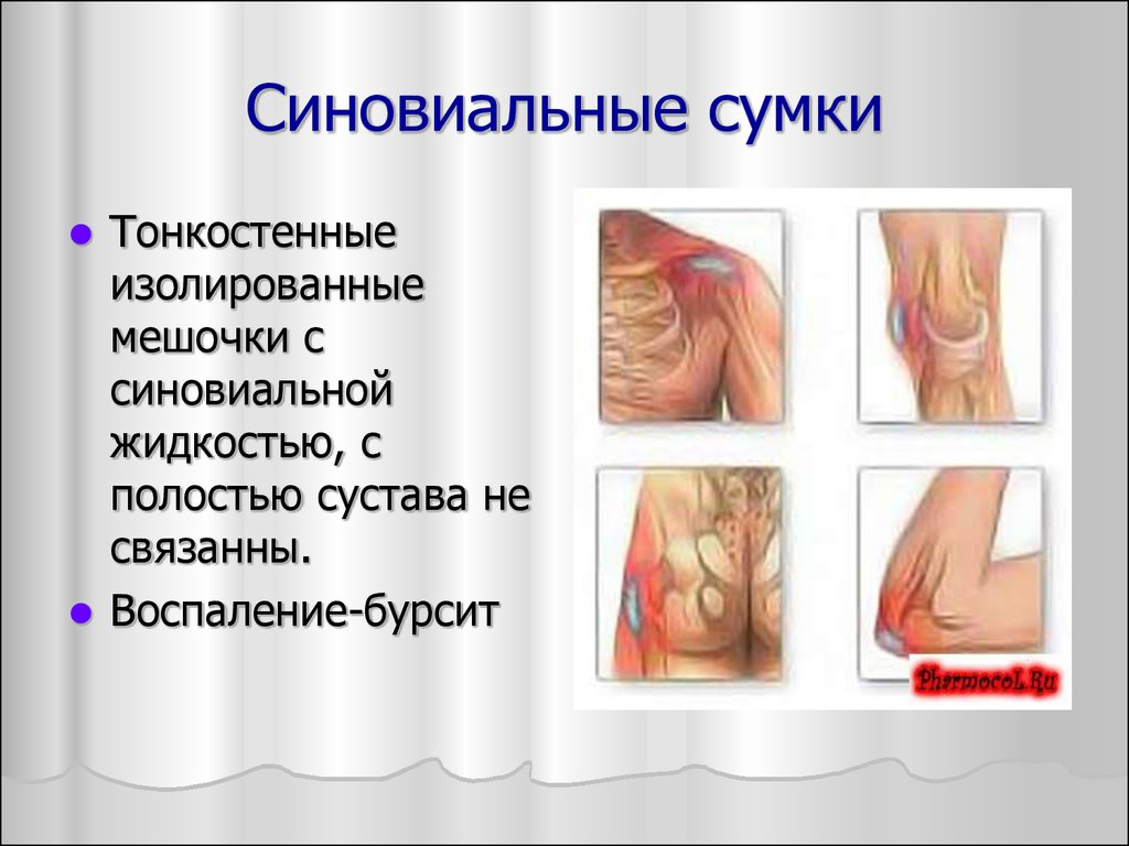 Бурсит супрапателлярной сумки коленного сустава