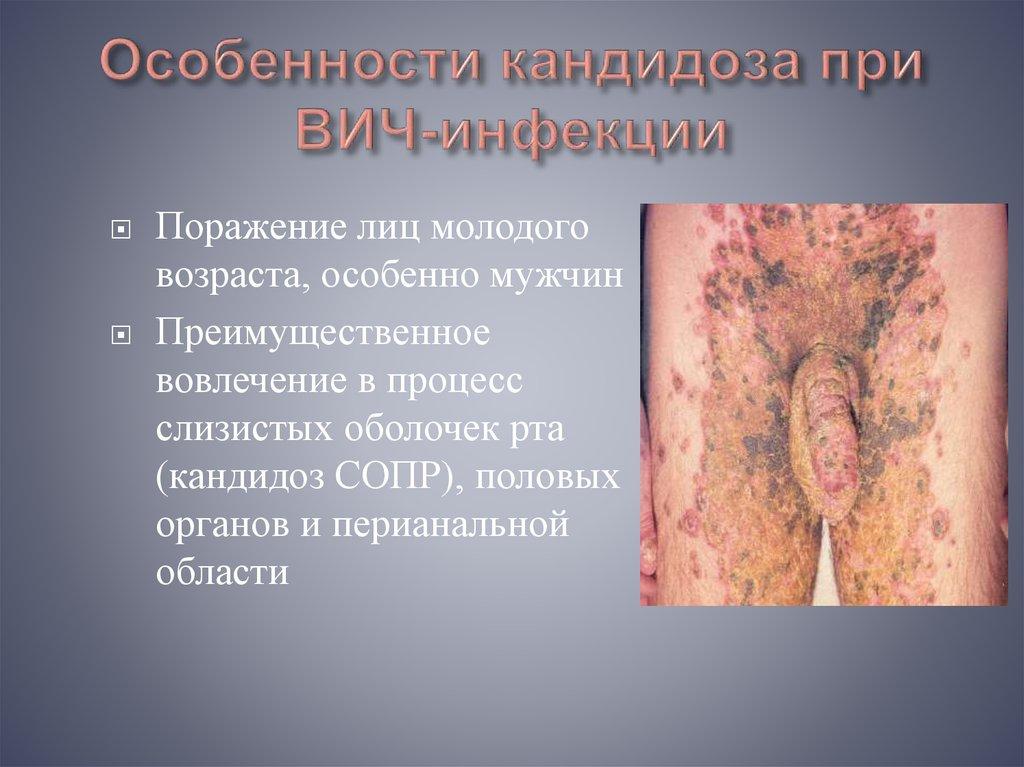 Вич признаком микоплазмы наличие рв является