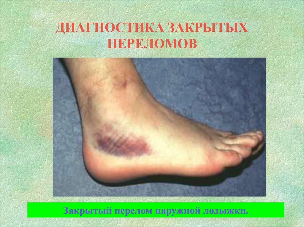 часто симптомы при трещине стопы легко найдет себе