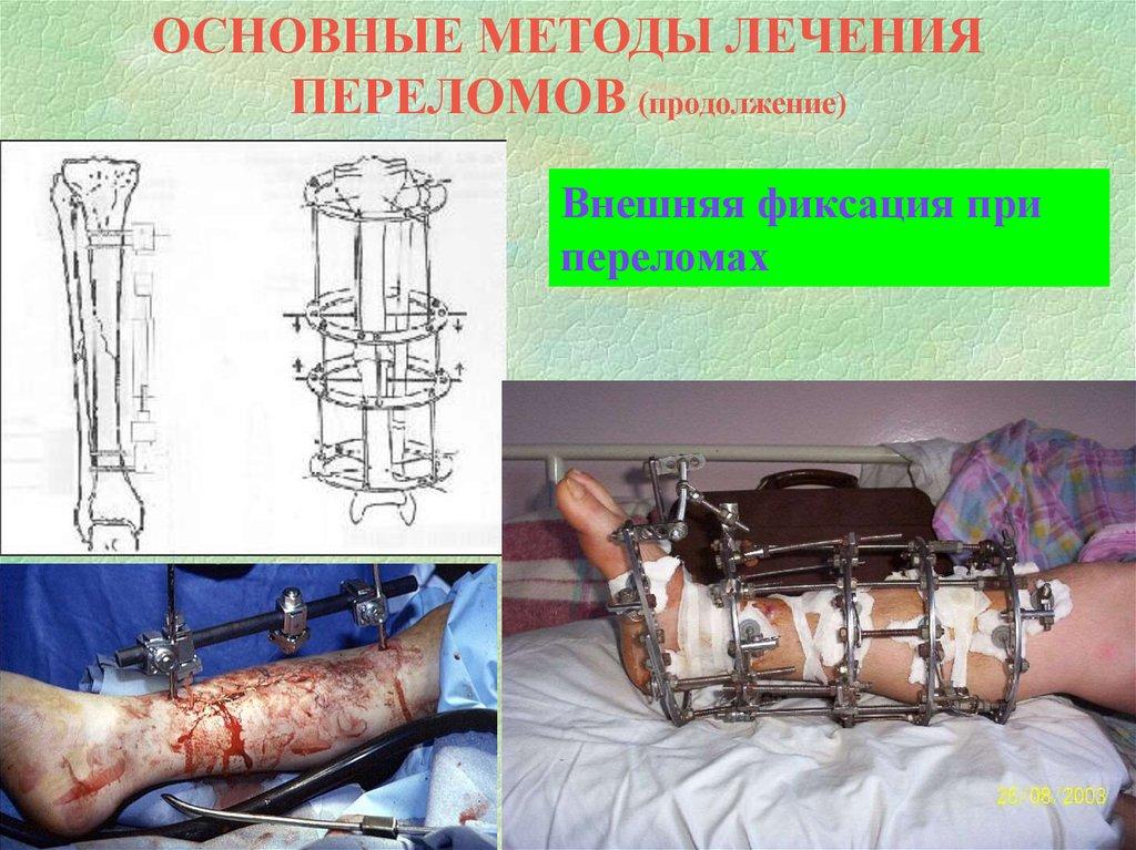 Введение в травматологию и ортопедию - online presentation