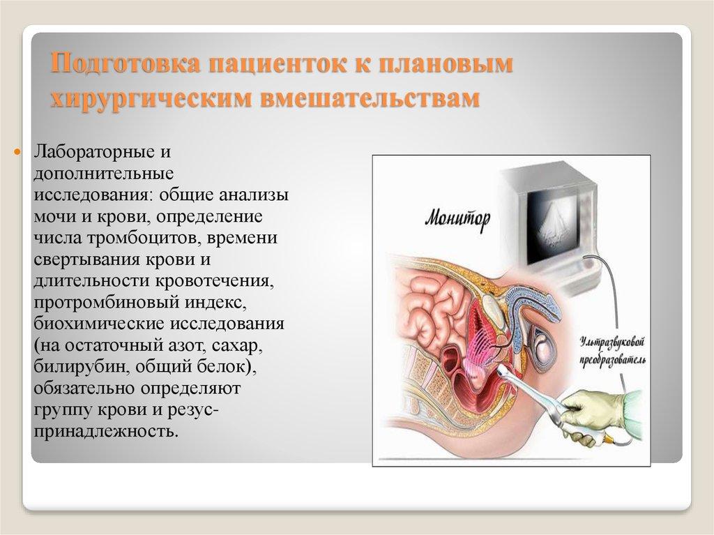 Подготовка пациенток к плановым хирургическим вмешательствам