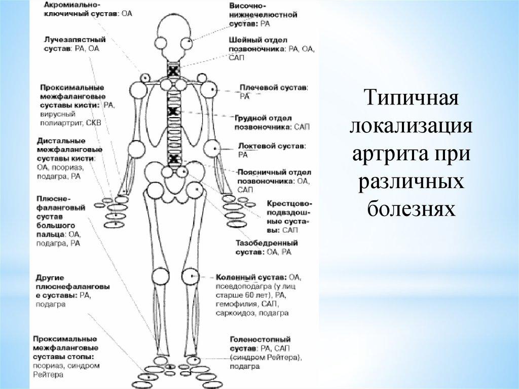 Подагра волчанка реактивный артрит псориаз суставной синдром секс после протезирования тазобедренного сустава