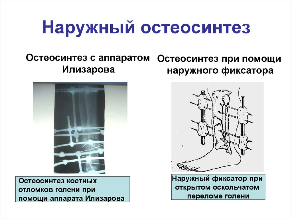 osteosynthesis types Osteosynthesis is the reduction and fixation of a bone fracture with implantable devices that are usually made of metal it is a surgical procedure with an open or percutaneous approach to the.