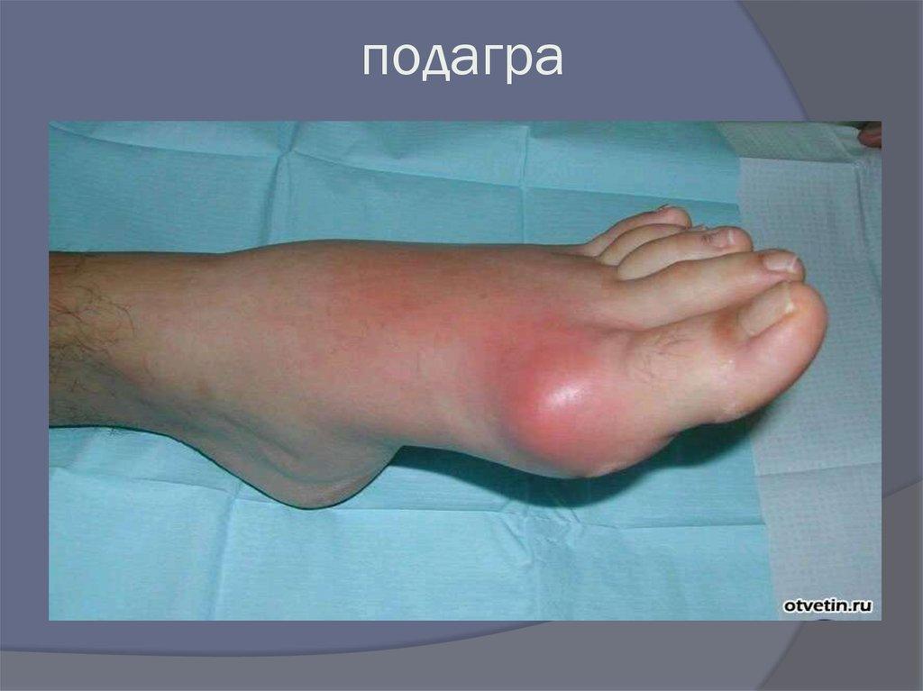 Аркоидоз псориаз и подагра синдром или совпадение