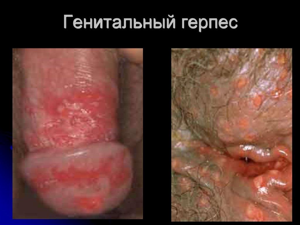 Болести предавани по полов път  Уикипедия