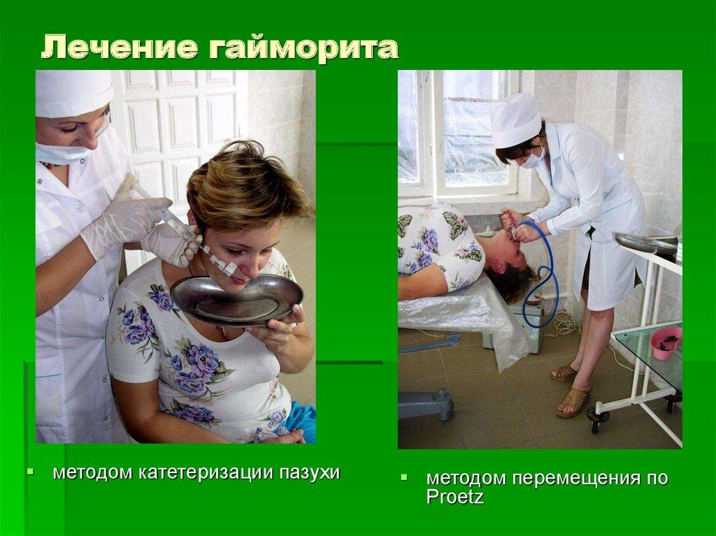 Синусит клиника диагностика лечение