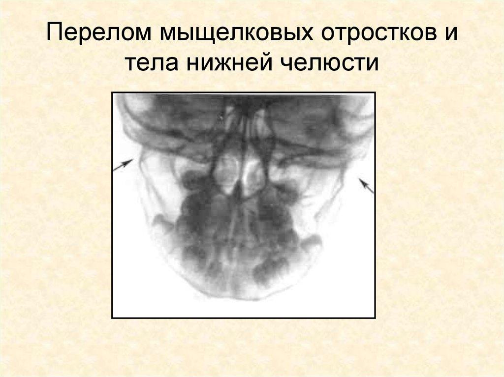 Гипоплазия суставного отростка челюсти боль в крупных и мелких суставах
