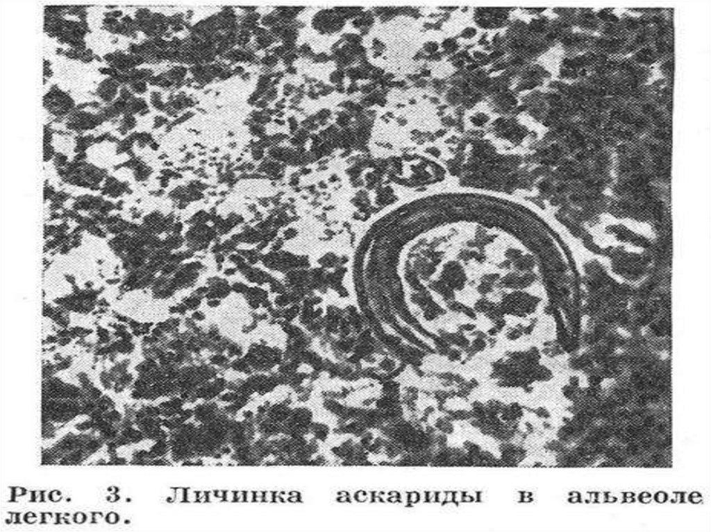 паразиты в легких человека симптомы форум