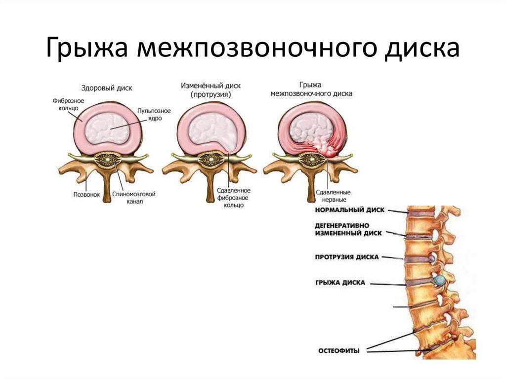 Диффузная грыжа межпозвонкового диска