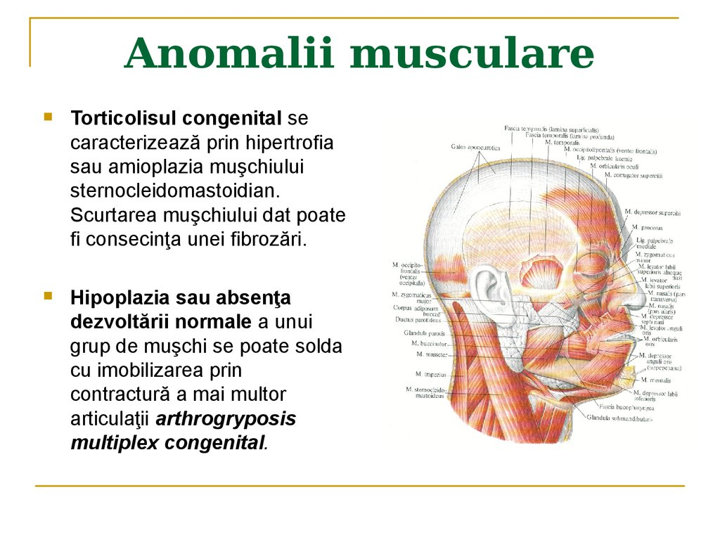 Anomalii musculare