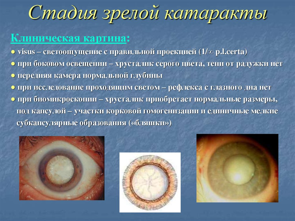 Tests To Diagnose A Cataract