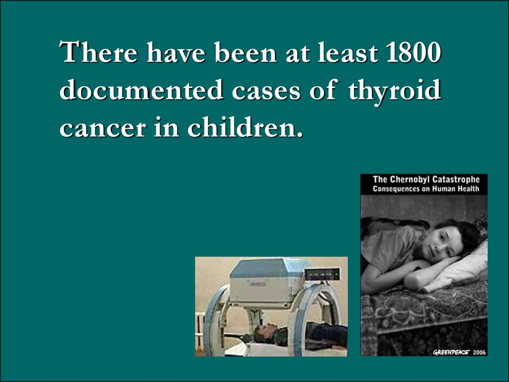 There have been at least 1800 documented cases of thyroid cancer in children.