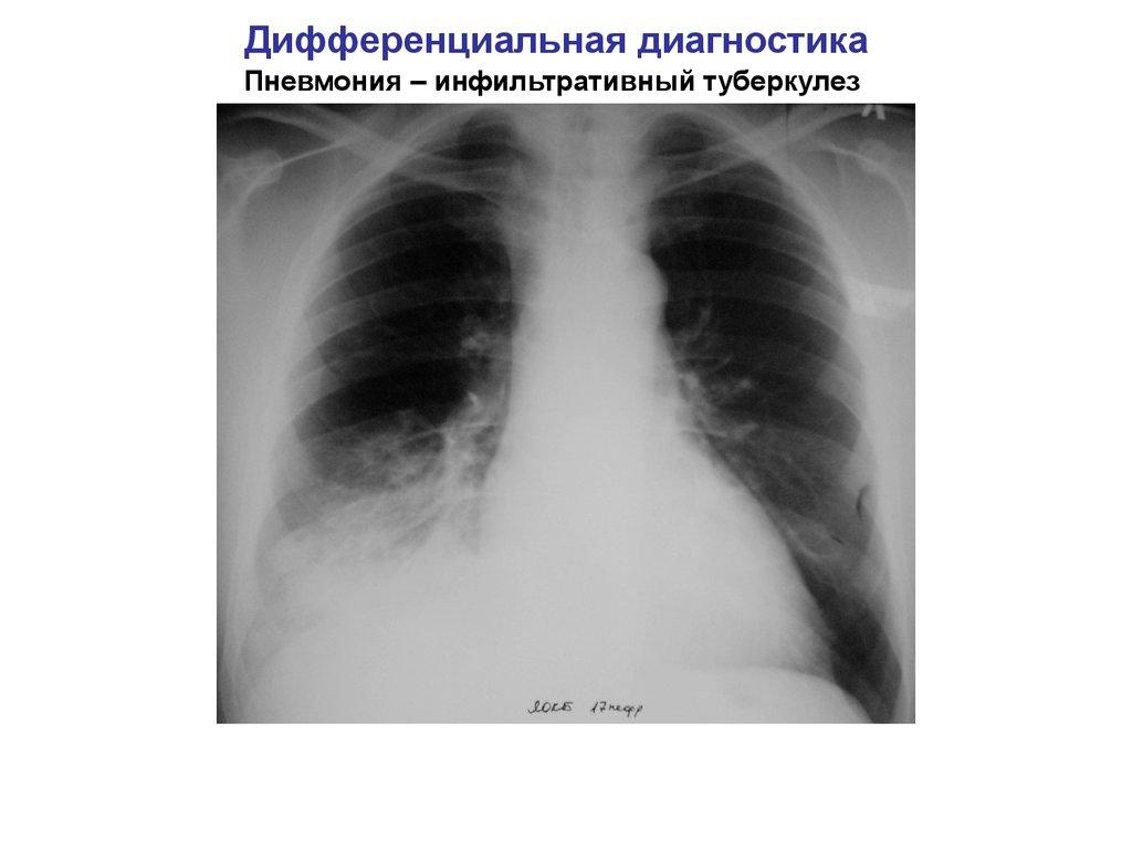 Туберкулез и рак легких доклад 1091