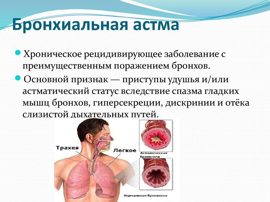 Бронхіальна астма це
