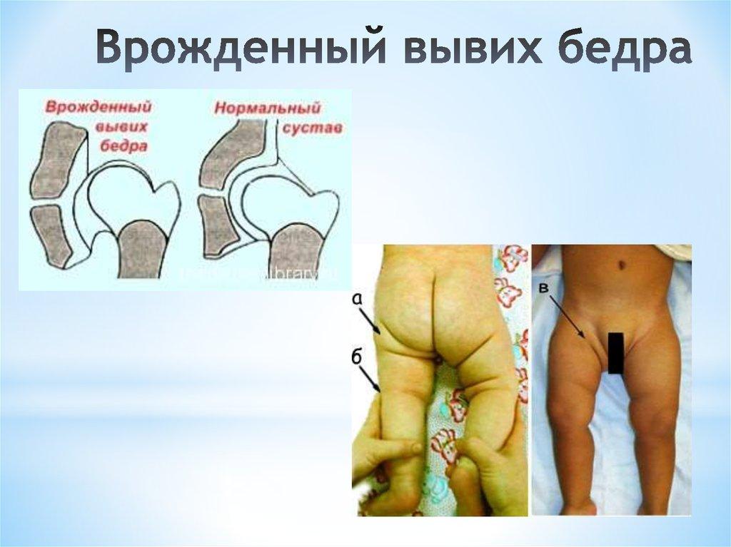 Дисплазия тазобедренных суставов у новорожденных признаки фото