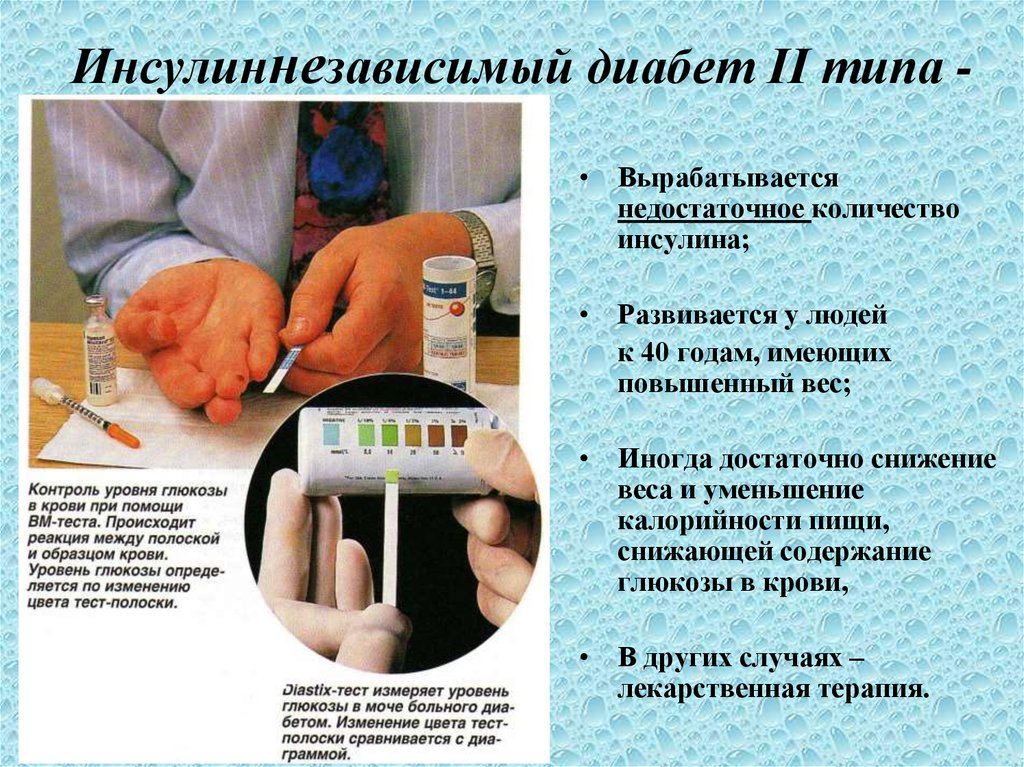 Недостаток инсулина является причиной сахарного диабета
