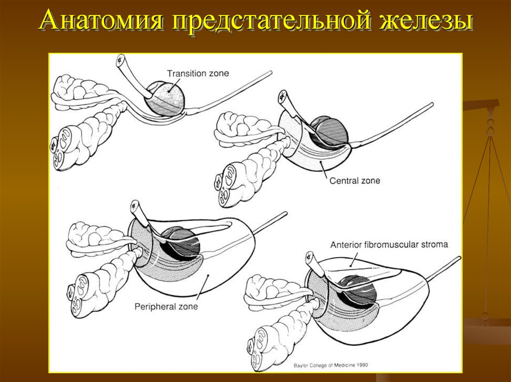 adenoma prostatico zoned