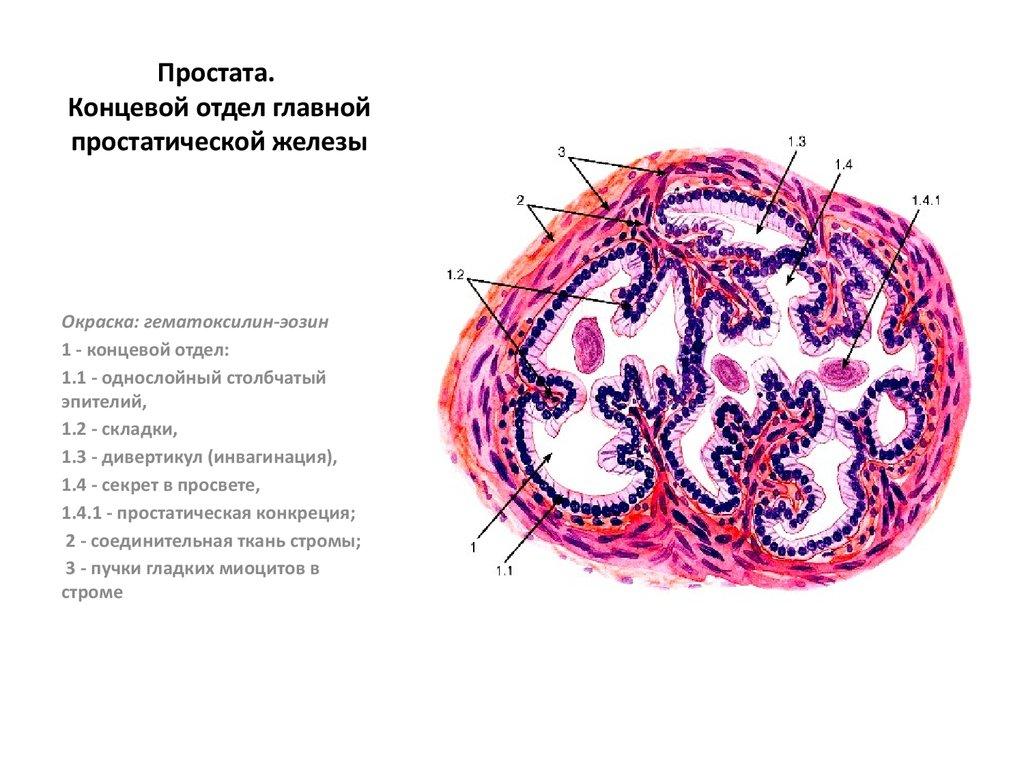 Единичные клетки переходного эпителия в секрете простаты