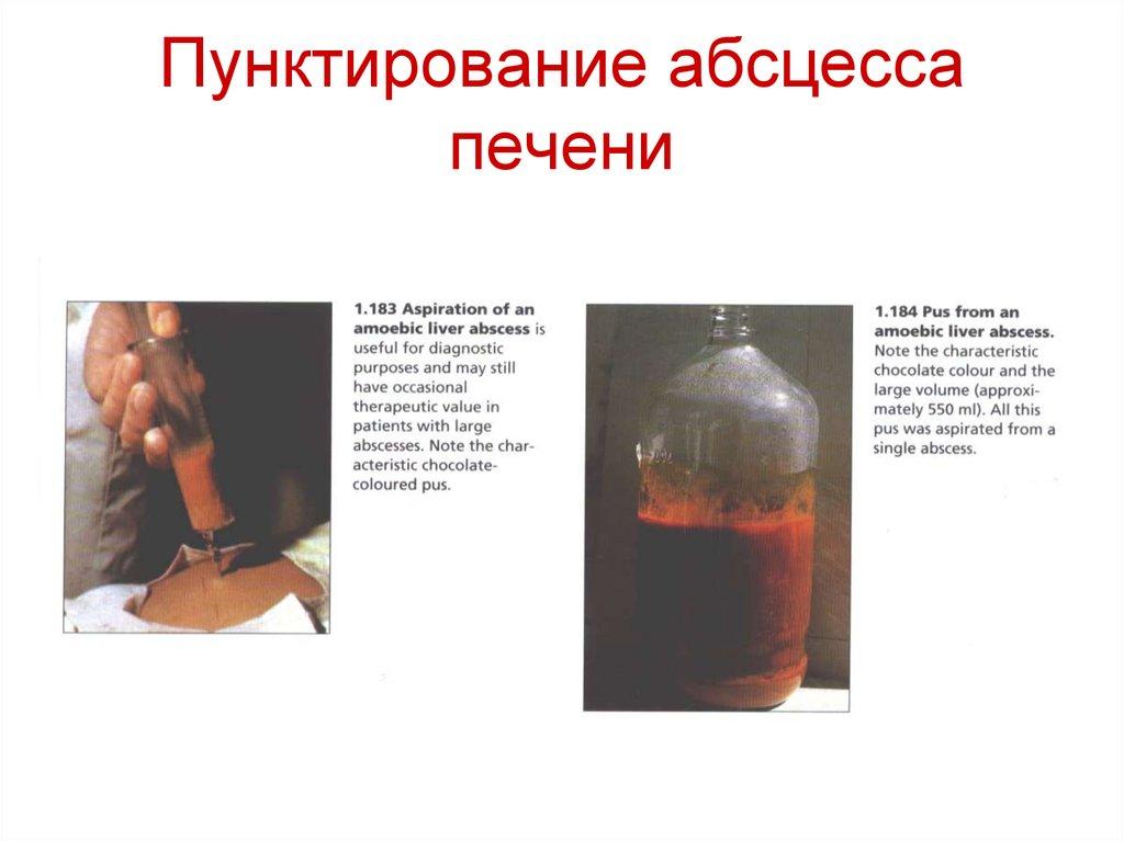 Кровяная инфекция Возбудители кровяных инфекций