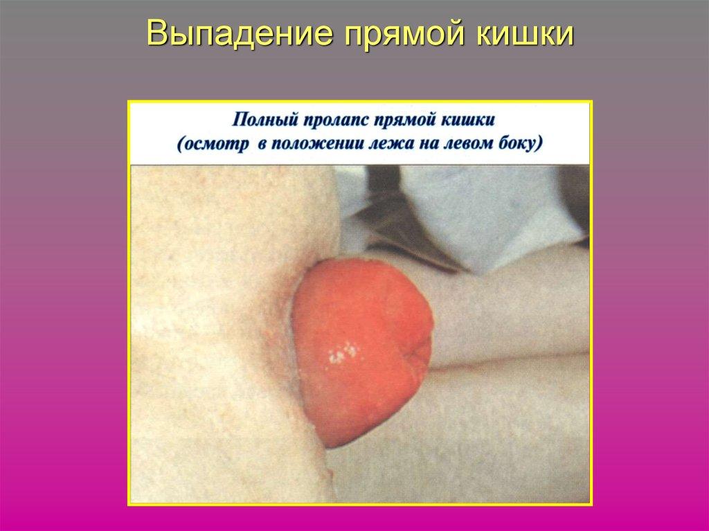хронический геморрой операция