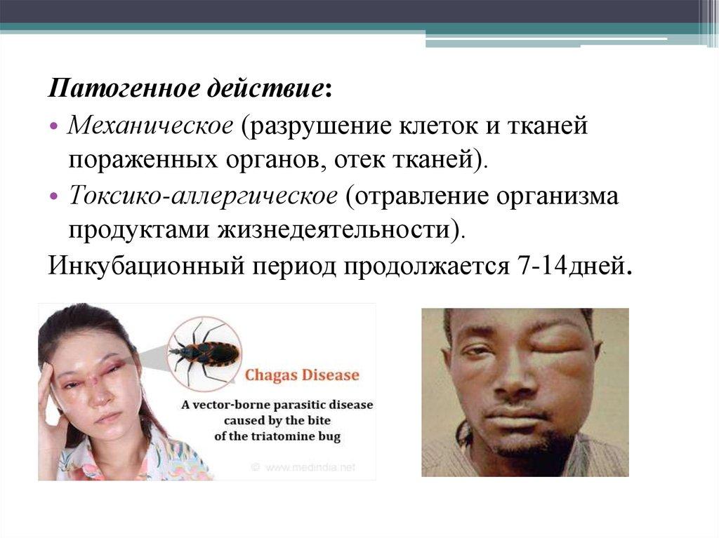 институт паразитологии лекарство от паразитов