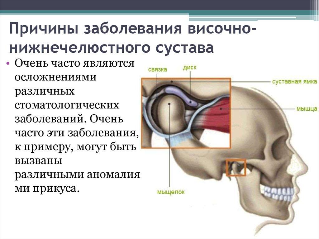 Заболевание височно нижнечелюстного сустава реферат что такое остеофиты коленного сустава и лечение