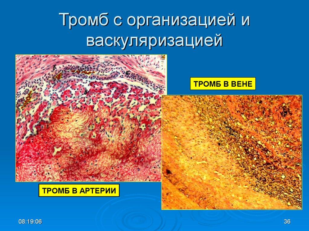 Лечение воспаленного варикозного узла
