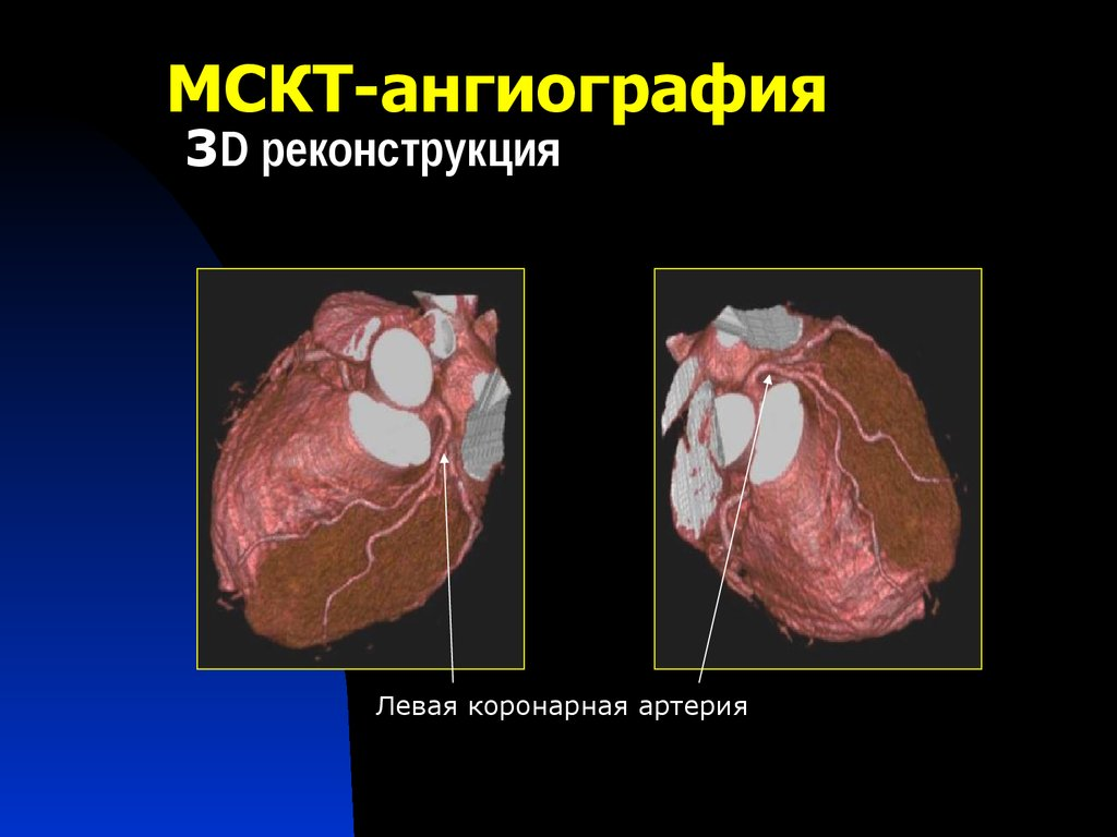 Компьютерная томография коронарных артерий