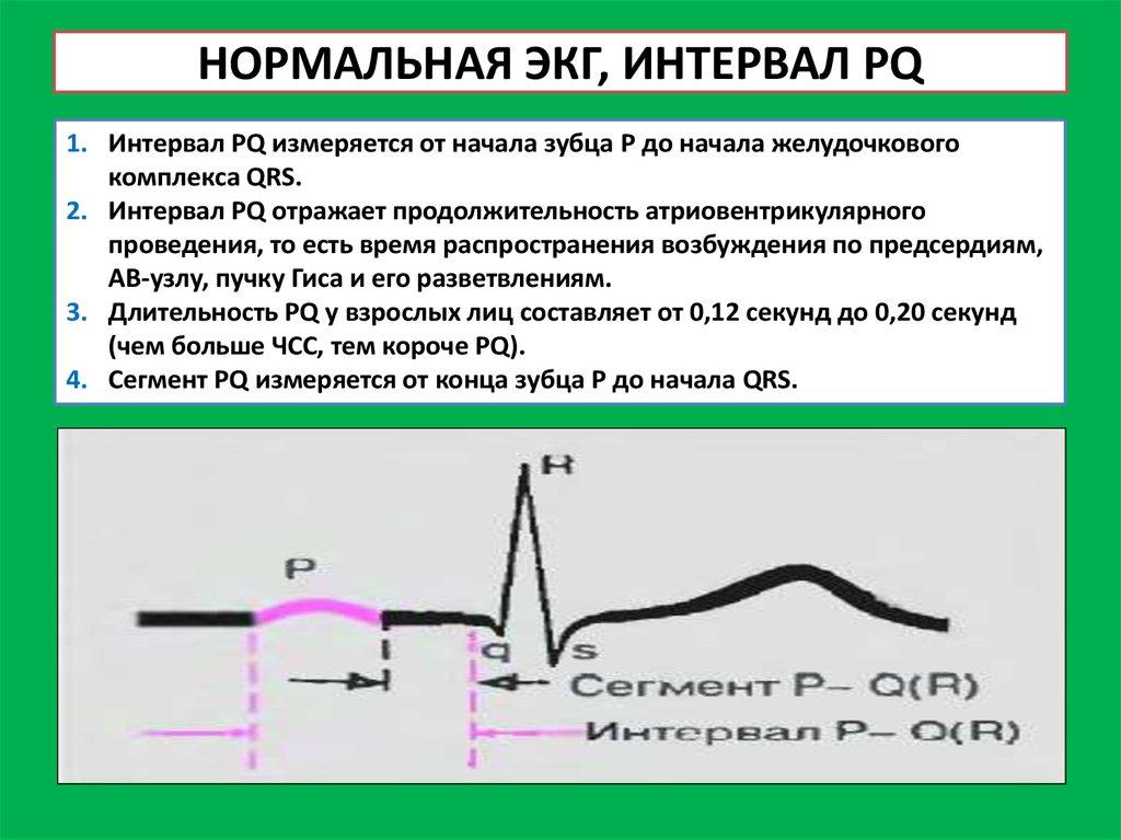 Реферат На Тему Электрокардиограмма