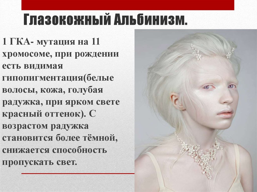 definition of albinism Albinism definition: the condition of being an albino humans with albinism usually have vision problems lack of chlorophyll in a plant or plant part, resulting in a pale color.