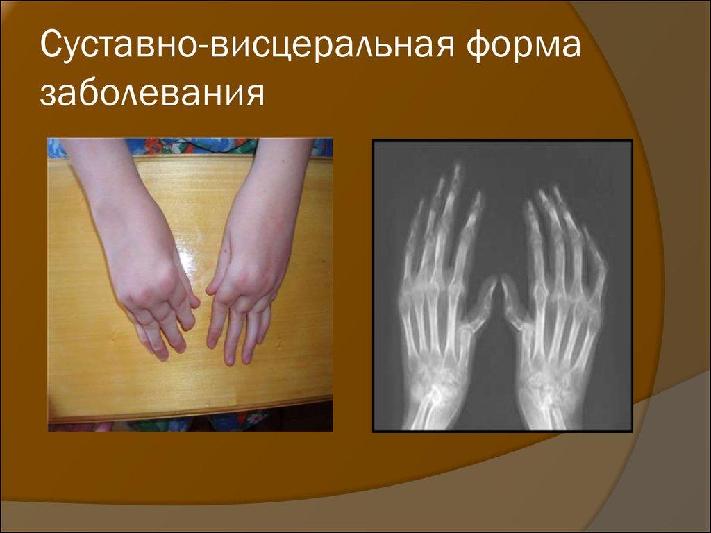 ревматоидный артрит.полиартрит.суставно - висцеральная форма