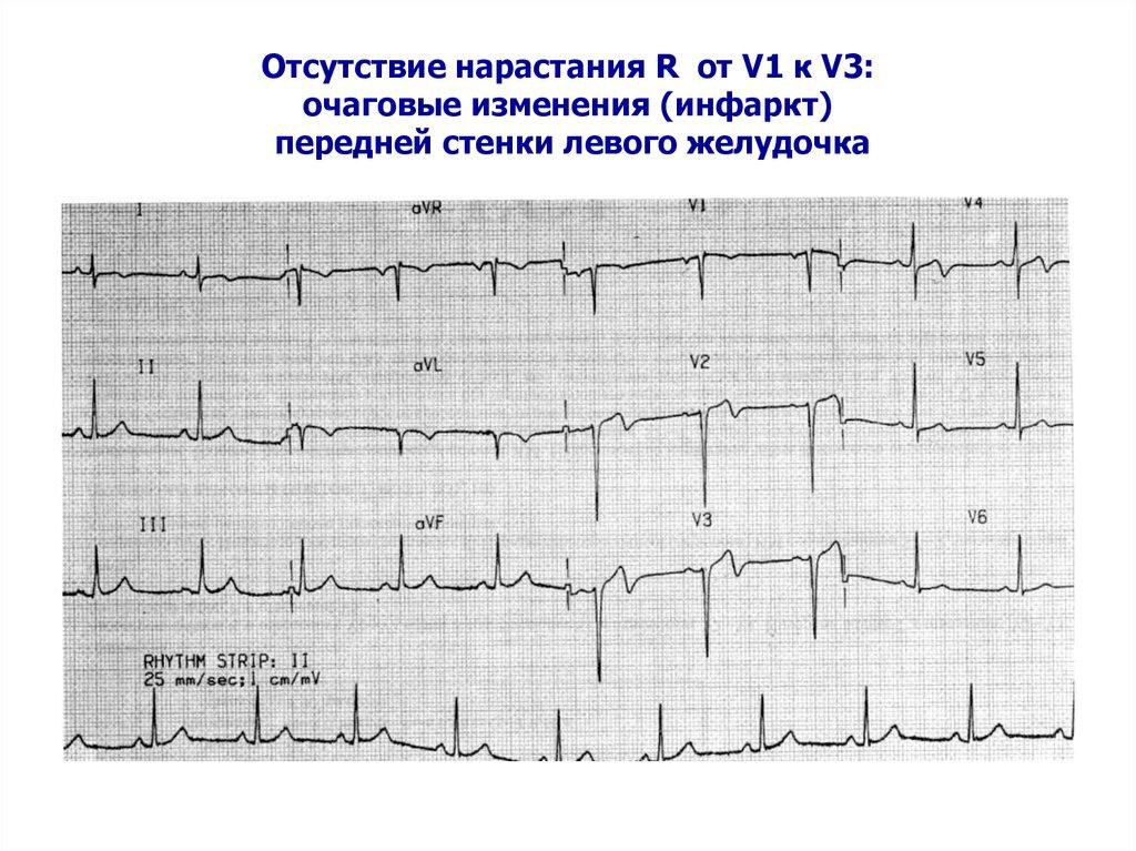 стенки фото передней миокарда по инфаркт