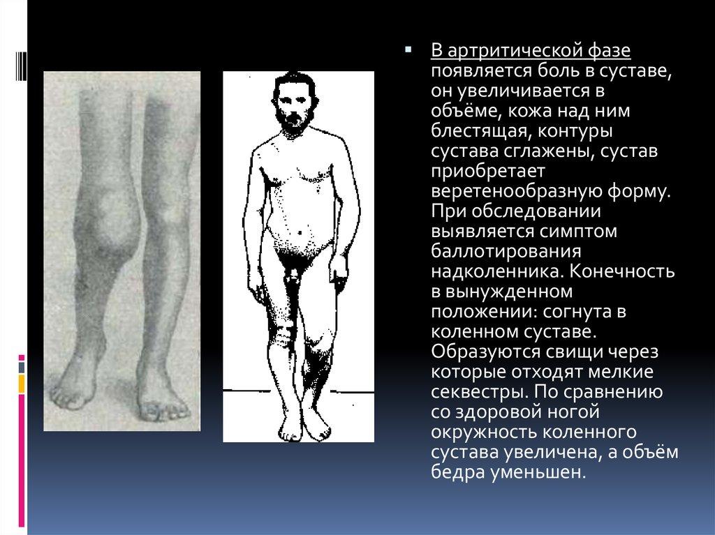 Туберкулез сустава в артритической фазе рисунок препараты для суставов жидкость