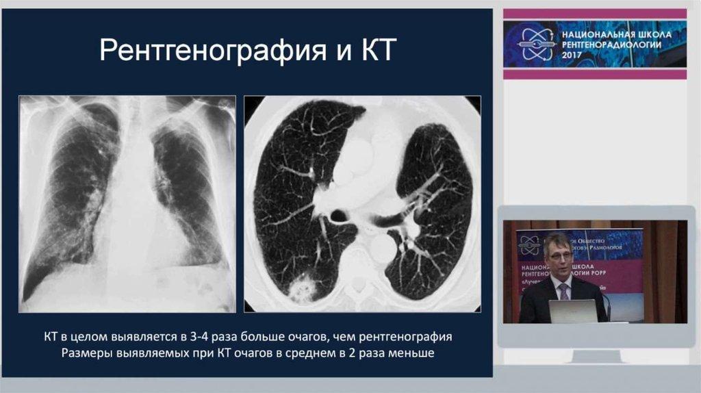 профилактике онкологических заболеваний шейки матки